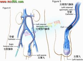 精索静脈瘤とはどんな病気?男性不妊症患者の …