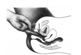 女性前列腺残迹增生