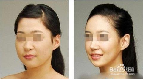 中国人造美女