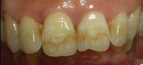氟斑牙怎么美白
