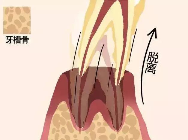 牙齿从松动到脱落的过程,看着就揪心!图片