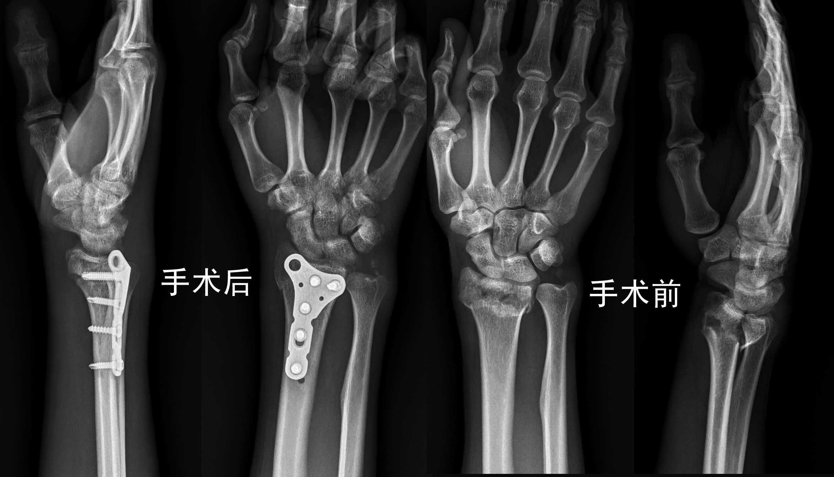 亚洲性交图新闻_职工工伤右桡骨远端粉碎性骨折可以赔多少钱