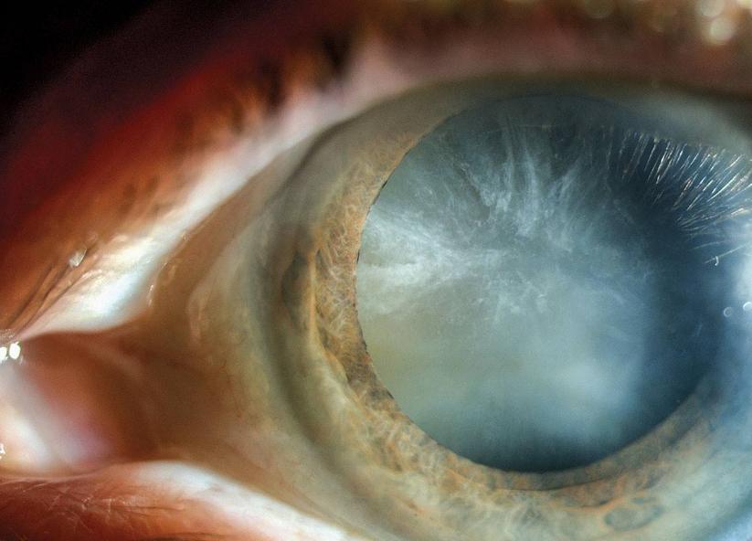 白眼球上长了胬肉图片_翼状胬肉就是从眼眶边缘长肉长到眼球上,这是一种慢性的疾病,刚开始