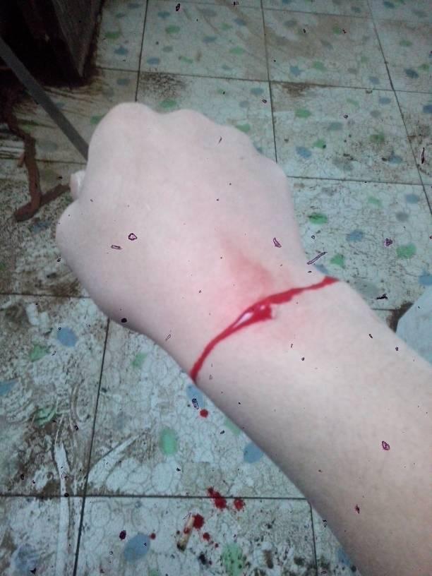 手腕上涨猴子_手腕处有一个小肉瘤 俗称刺猴子 自己用美工刀除去后流血不止 急求
