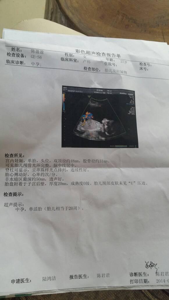 """百度宝宝知道""""相关的详细问题如下:怀孕四个月,梦到自己生了三个男孩图片"""