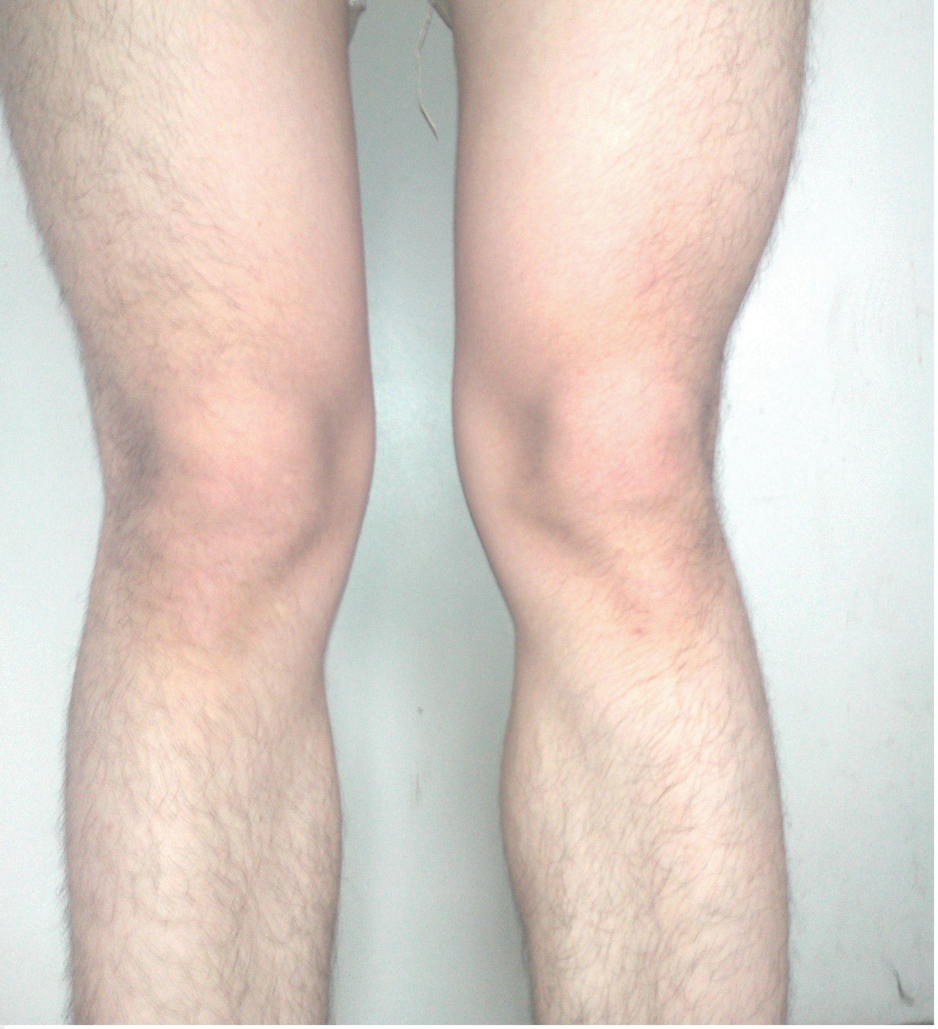 x型腿矫正方法 婴儿o型腿矫正图解高清图片