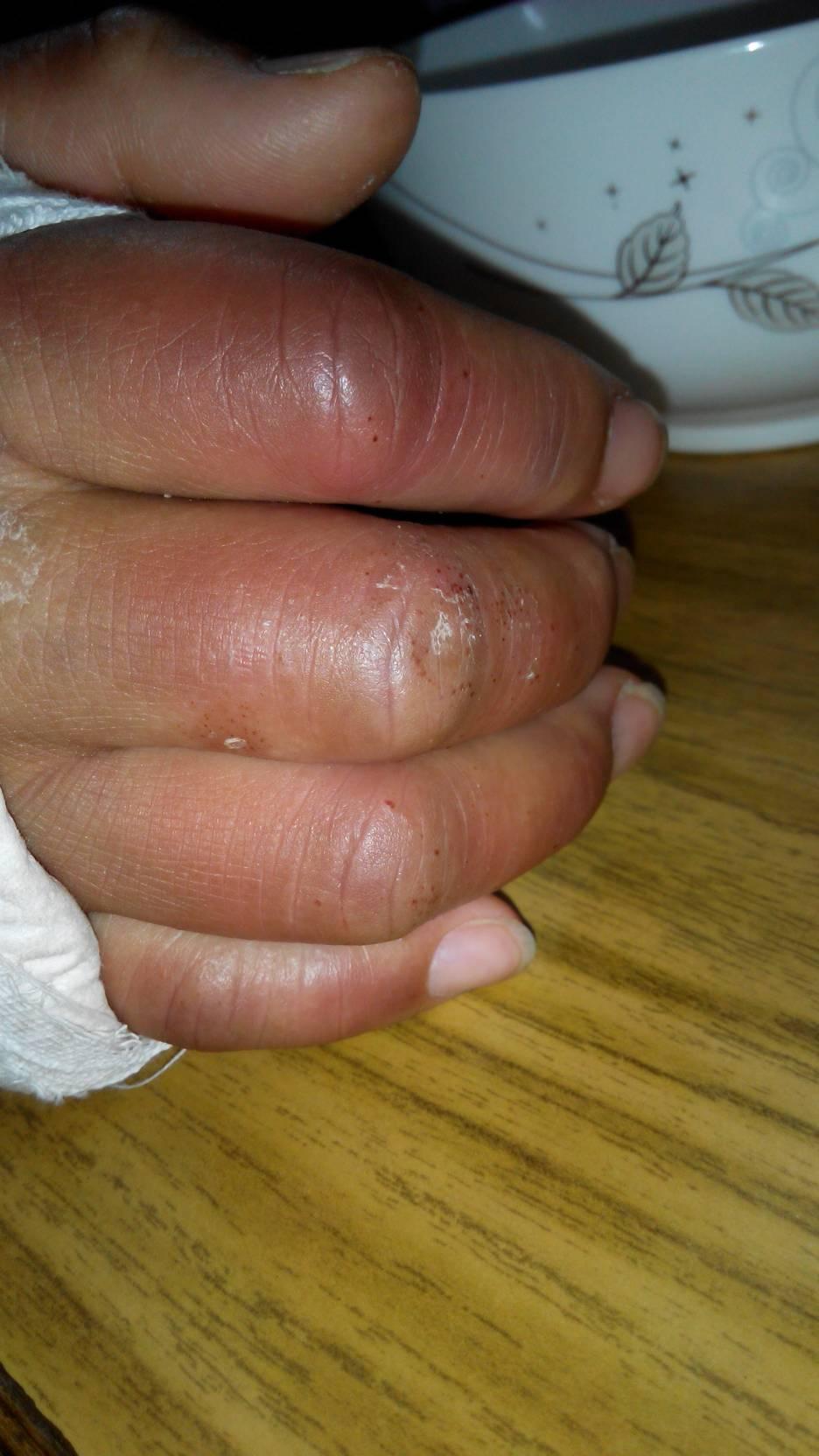 手腕因骨裂打着石膏.手指上出现水泡,发紫发黑.有小黑点,小水泡出现.图片