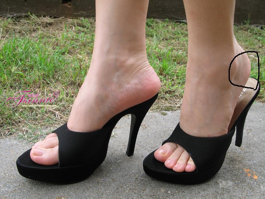 穿靴子脚侧面难受怎么办