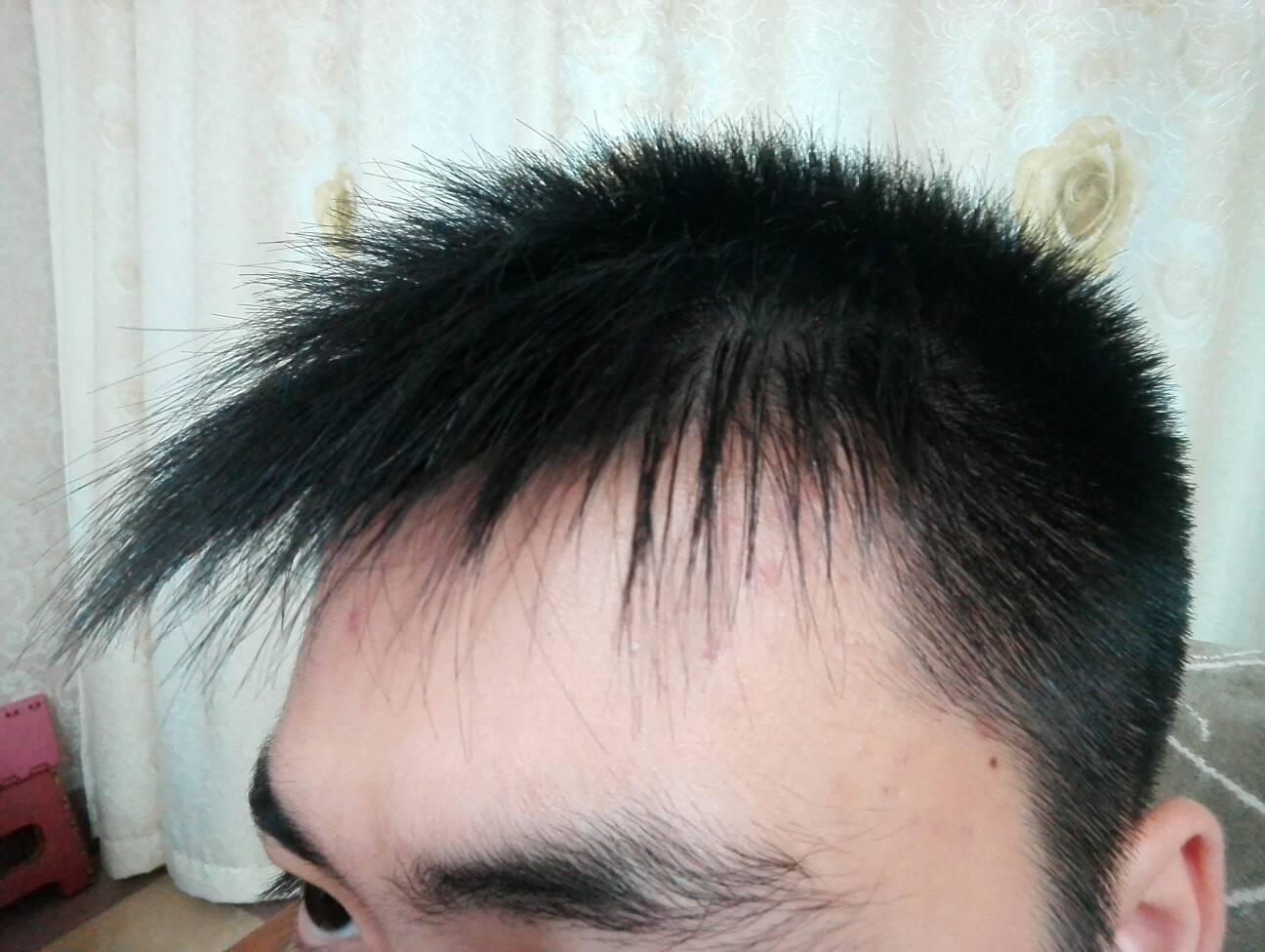 每次一洗完头,就和爆炸头一样,请问这样的头发做软化好还是烫直好?图片