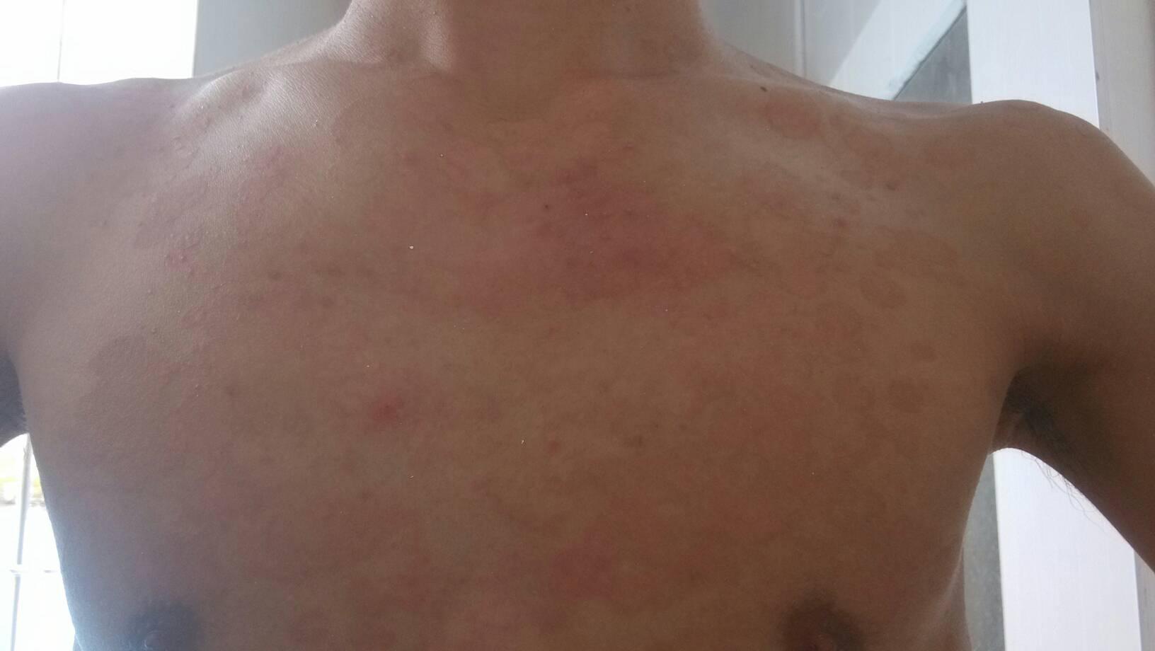 这是什么皮肤病是过敏