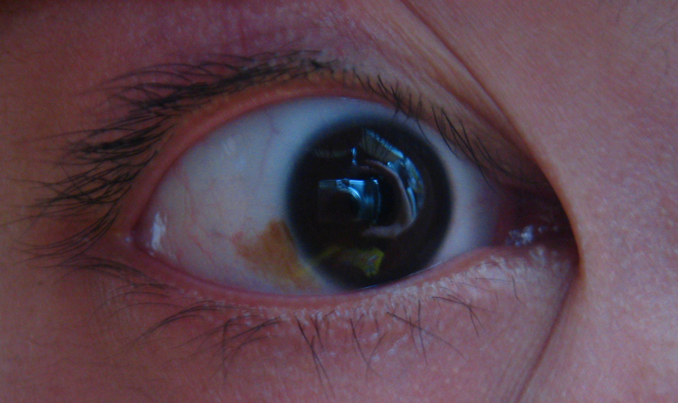 黑眼球上有个白点图片_眼球上眼白的地方有黄色的斑是怎么回事?