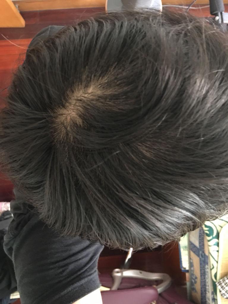 发旋处头发是不是很少图片