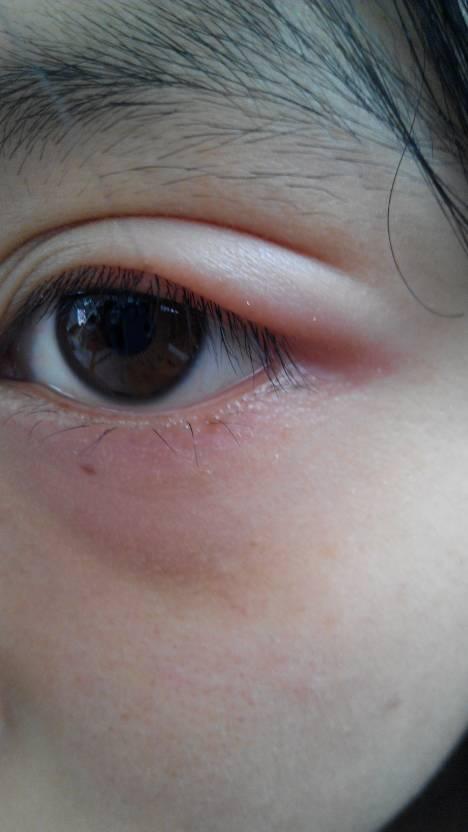 这几天早上起来眼睛光流眼泪就在家找了眼药水滴了可滴.