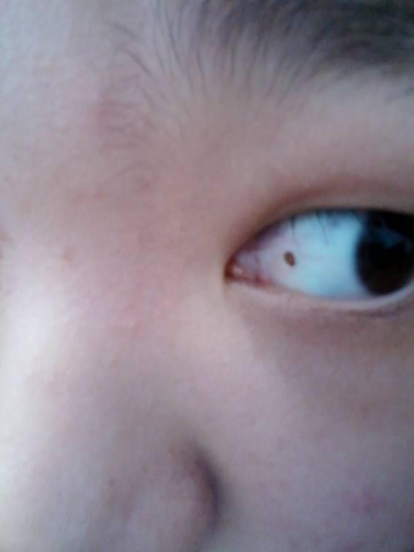 眼睛充血但是不痛不痒_问:眼睛里有个这样的东西,不痛不痒,但就是长在那里了,是什么?有害吗