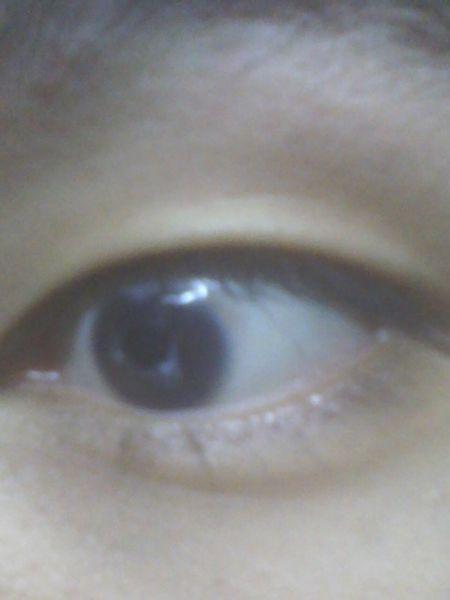 黑眼球上有个白点图片_我的左眼球上出现一个小白点,怎么也弄不掉,而且左眼疼,干,怕风,视力