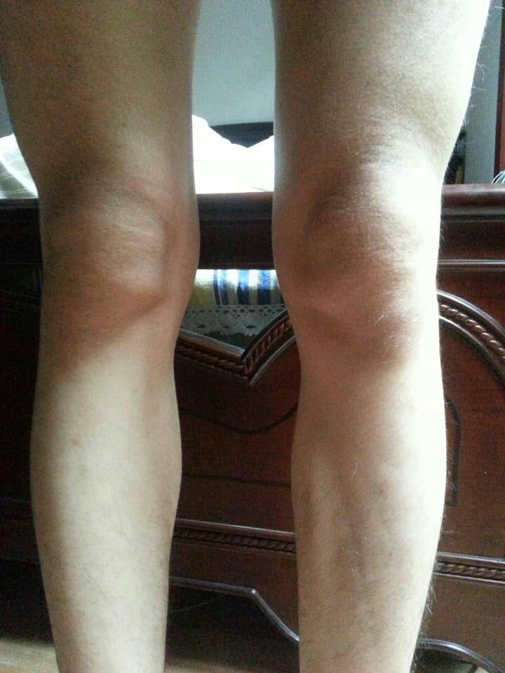 膝盖骨头错位_导致膝盖错位了 ...