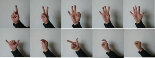 我想知道我的手指弯曲是什么原因?我长过冻疮会不会是
