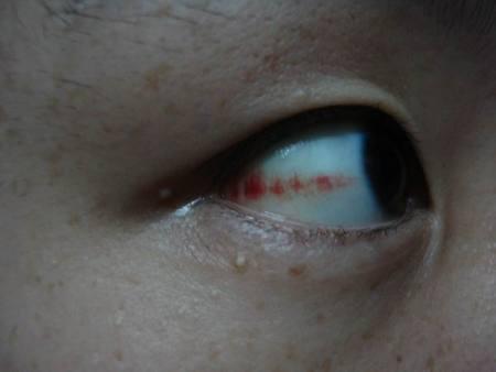 黑眼球上有个白点图片_白眼球上有红斑