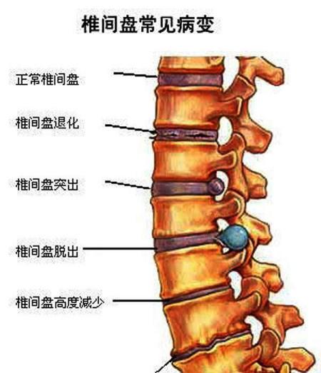 腰椎结构示意图