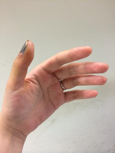 0回答 20 手指甲粉红色部分从中间横着断了,能再长出来吗图片