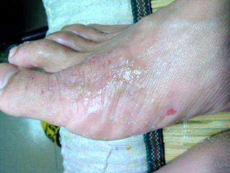 衡水北方皮肤病研究所能治疤痕疙瘩吗图片