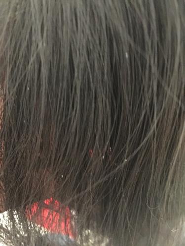头发上这白色东西是什么啊图片