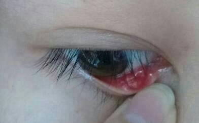 眼睛充血但是不痛不痒_问:医生我眼睛里面长的是什么啊?是息肉吗?不痛不痒都长了一个月了.