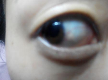 眼球上长了个白色疙瘩_我眼睛里靠近黑眼球的地方长个小疙瘩,怎么回事啊?