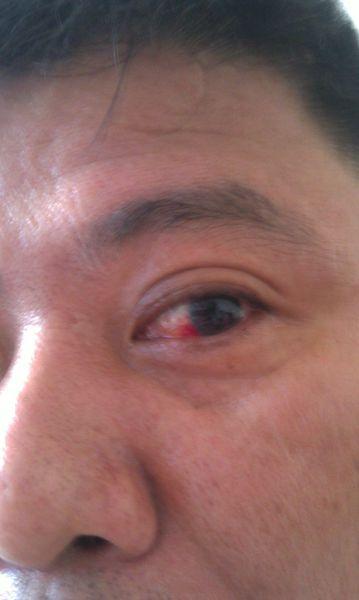 眼睛充血_眼睛充血是什么问题?