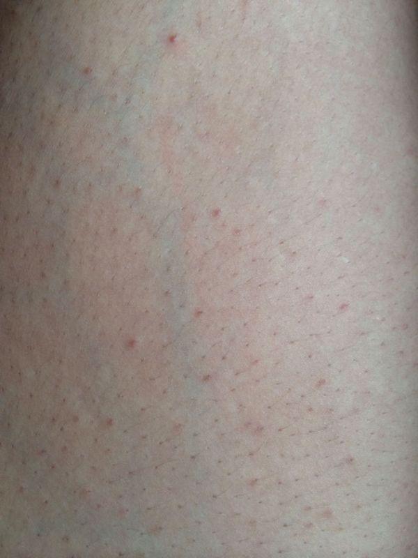 问 谁知道大腿内侧长的红色小痘痘是什么 我29岁女,最近两年发现大