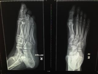 欧美激情性爱毛片_第五趾骨撕撕脱性骨折会造成连接处的肌腱断