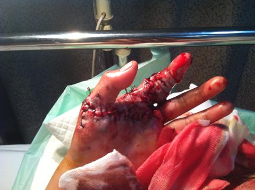 10岁_女孩子二十岁,左手食指拇指完全离断,食指