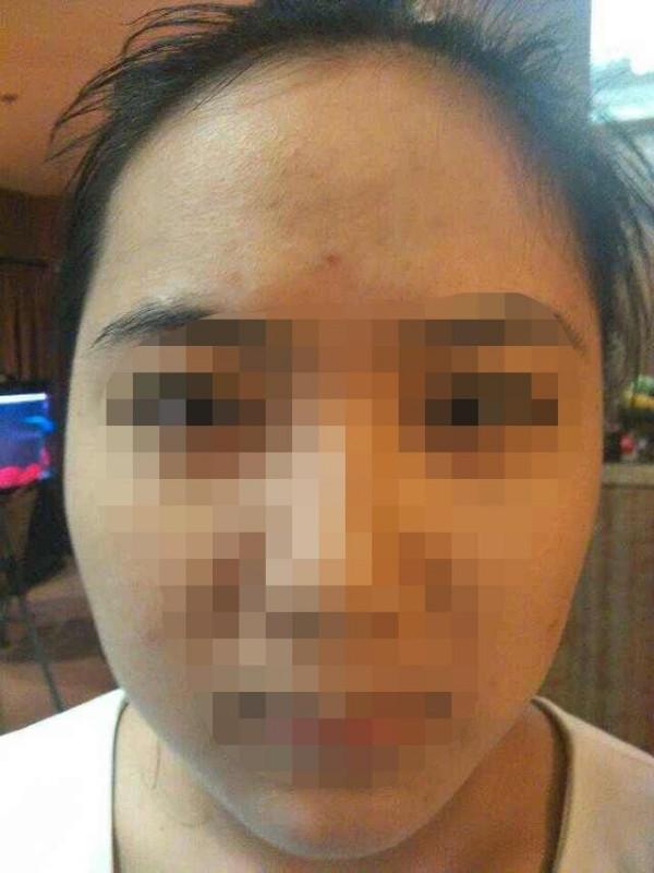 脸上皮肤过敏红肿起皮怎么治,才能好的快?