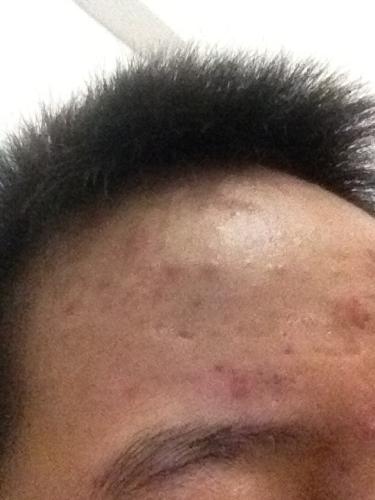 痘现在没了头发也剃掉了图片