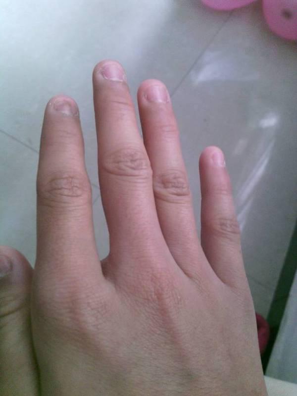 软是怎么回事_我的手从小这样,长出来的是软指甲,怎么才