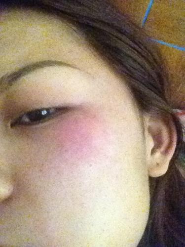 我的脸部经常过敏,又痒,又红肿,也常脱皮