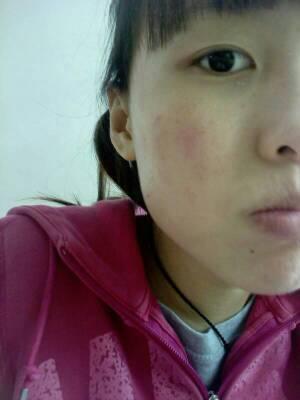脸上有小米粒疙瘩_脸上出现小痘痘,有点发红,有点痒.