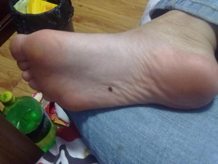 女人右脚底有痣好不好