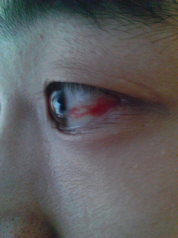 眼睛充血_眼睛充血怎么办?晚上睡了一觉醒过