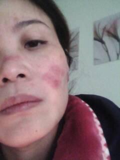 脸冻伤发痒一碰就疼应该怎么办?