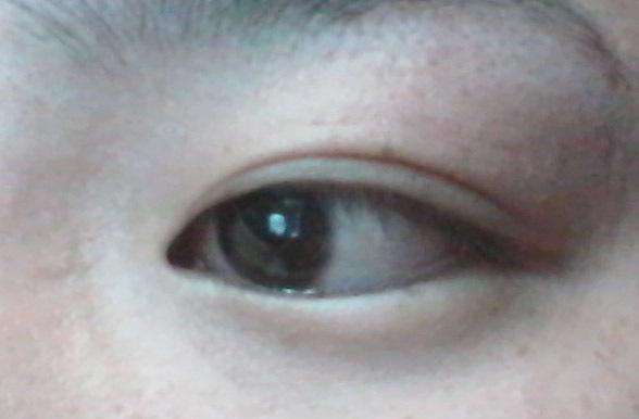 眼球上长了个白色疙瘩_黑色眼珠子里面长了个白色的疙瘩,发现两三
